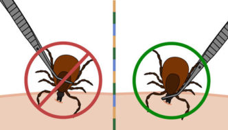 3 Steps to Removing Ticks Safely